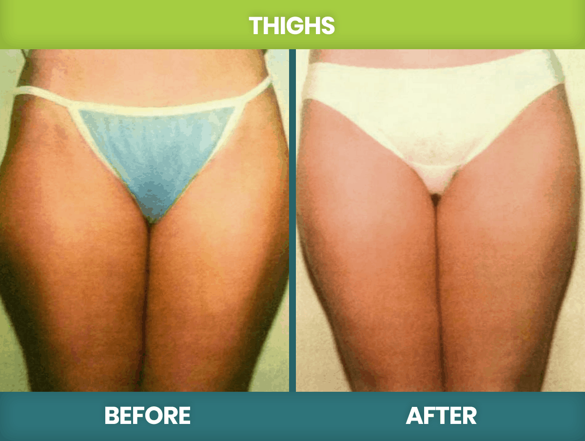 Befor-after-Thighs
