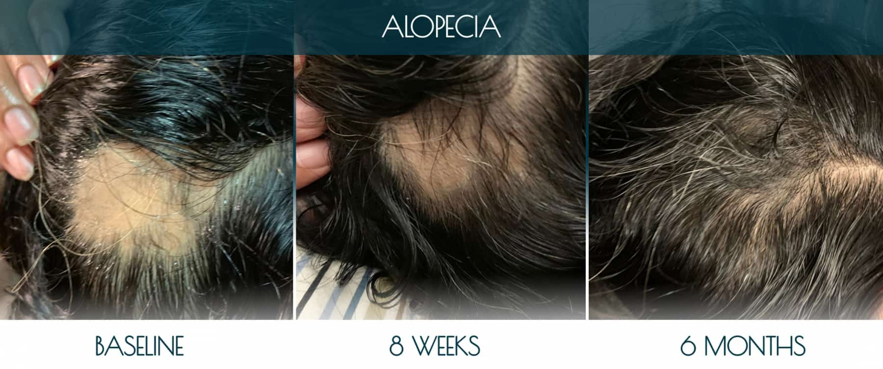 Befor-after_ALOPECIA-1