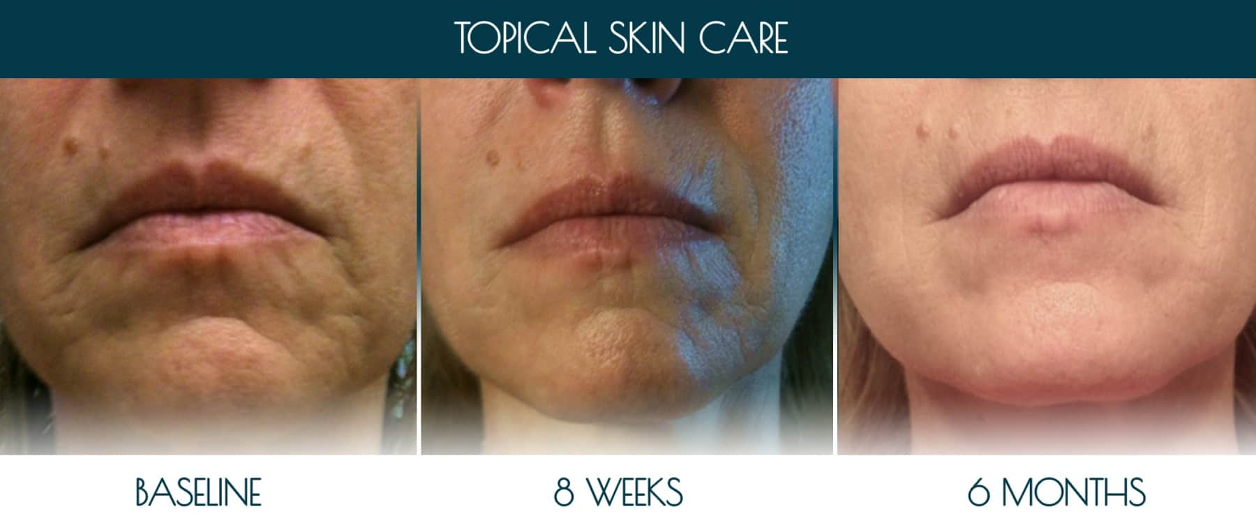 Befor-after_topical-skin-1