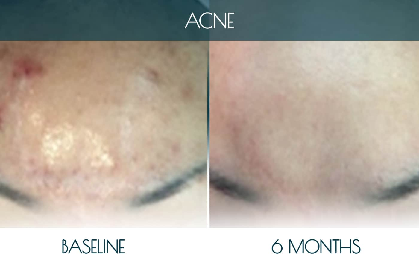 Befor-after_ACNE-1-1