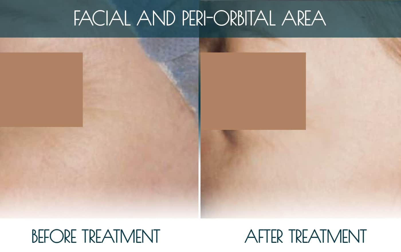 Befor-after_FACIAL-AND-PERI-ORBITAL-AREA-1