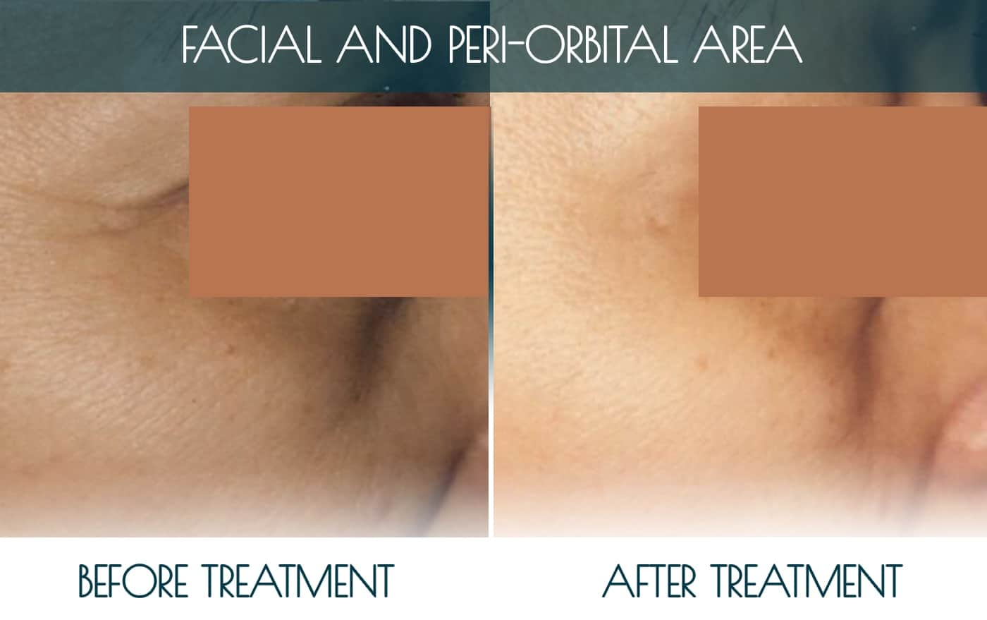 Befor-after_FACIAL-AND-PERI-ORBITAL-AREA-2-1