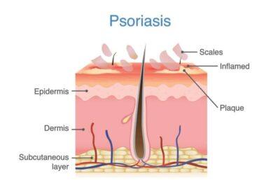 Psoriasis Diagram