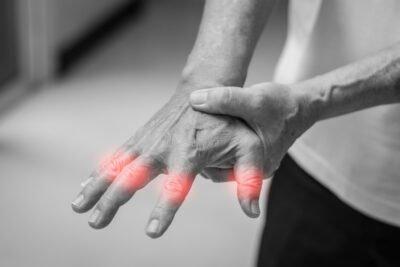 Rheumatoid Arthritis   Hand Pain
